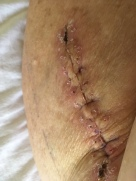 Two weeks after surgery, staples removed